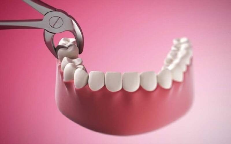 Nhổ răng là phương pháp điều trị cuối cùng và cần phải trồng răng giả