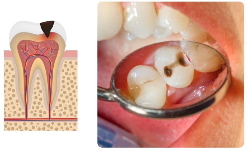 Những lỗ sâu phát triển bắt đầu ăn vào tủy răng.