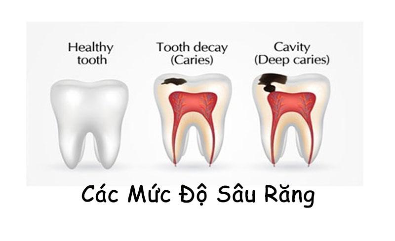 Biểu hiện của các cấp độ sâu răng