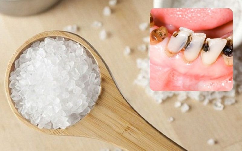 Muối từ lâu đã được dùng với mục đích làm sạch khoang miệng, ngừa sâu răng