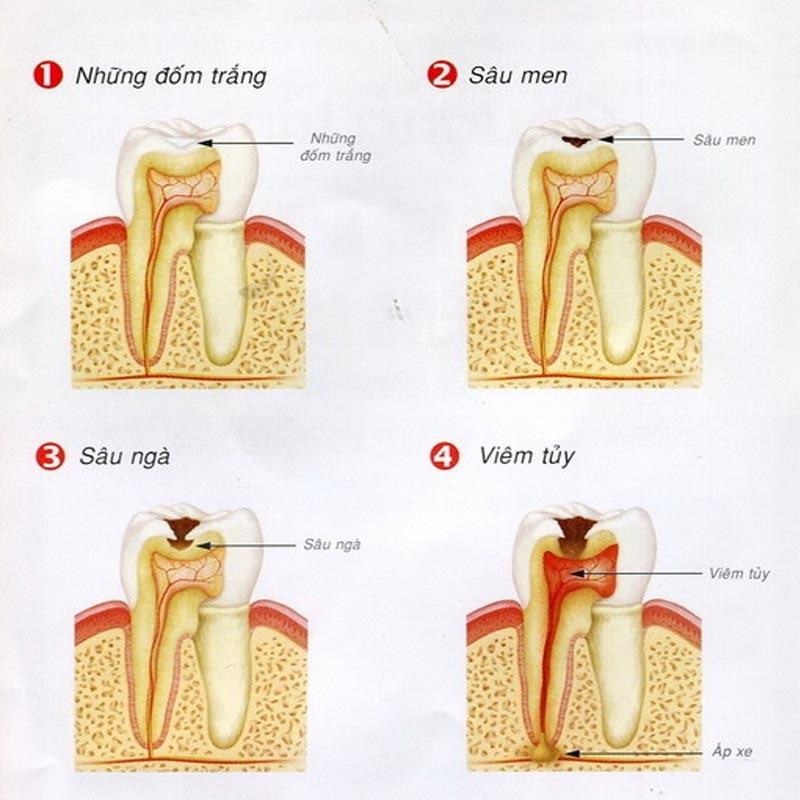 Các giai đoạn của sâu răng