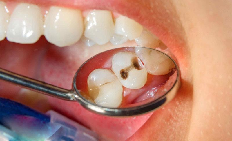 Cách nhận biết sâu răng chính xác nhất là dựa vào dấu hiệu lạ trên bề mặt răng