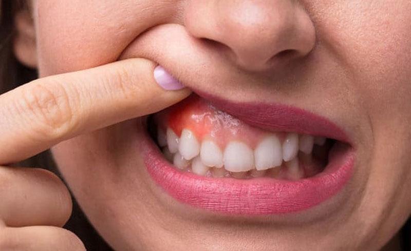 Khi bệnh trầm trọng hơn sẽ gây ra khó khăn trong việc chữa và chi phí điều trị răng sâu lồi thịt cũng sẽ lớn hơn.