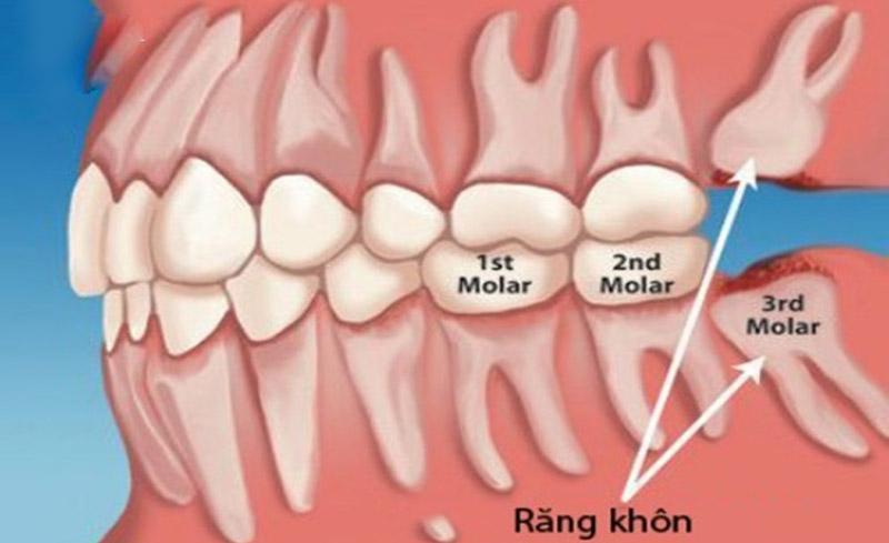 Vị trí của răng số 8 trong hàm.