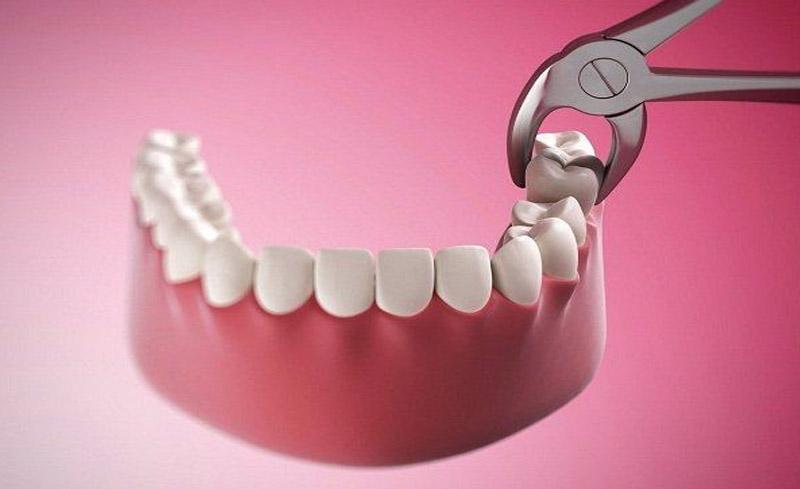 Cách xử lý răng số 8 bị sâu vỡ là nhổ bỏ răng