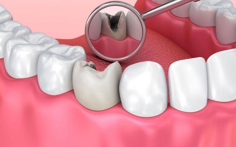 Mọi đối tượng đều có thể bị sâu răng tấn công