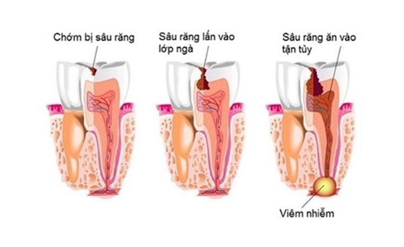 Quá trình sâu răng ăn vào tủy