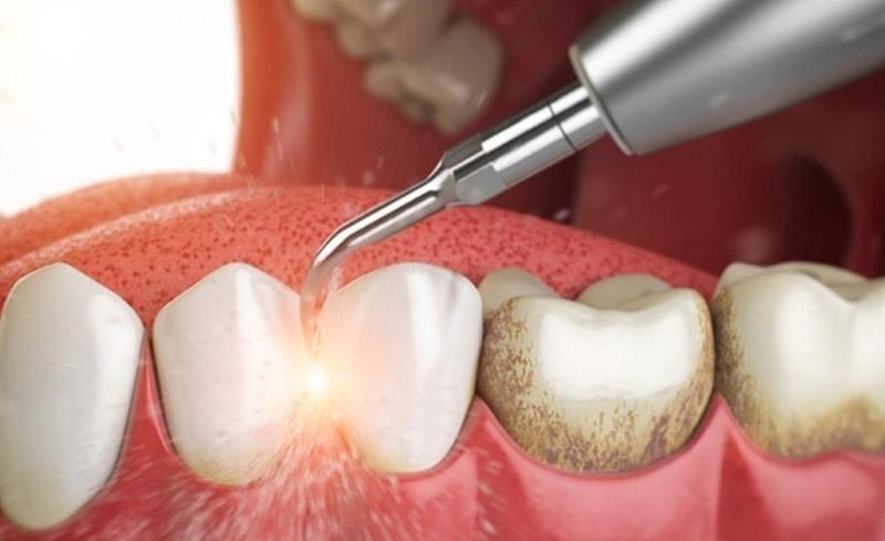 Nên lấy cao răng định kỳ 6 tháng 1 lần để có hàm răng sạch khỏe.