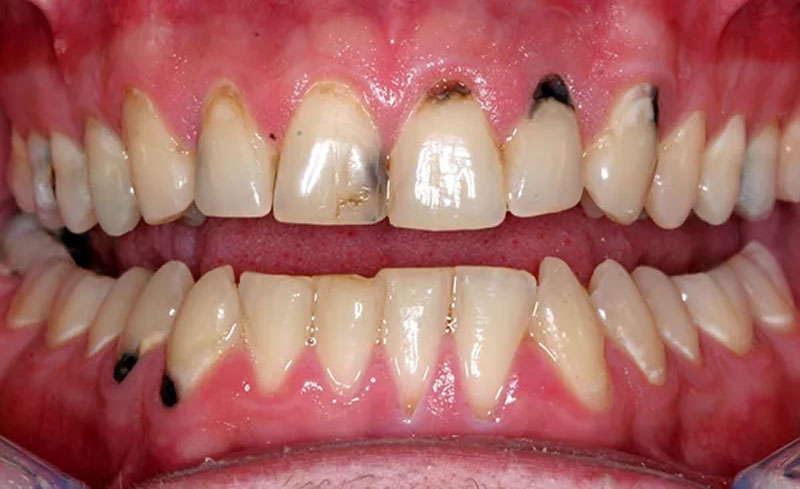 Bệnh sâu răng có chữa khỏi được không là câu hỏi nhiều người quan tâm.