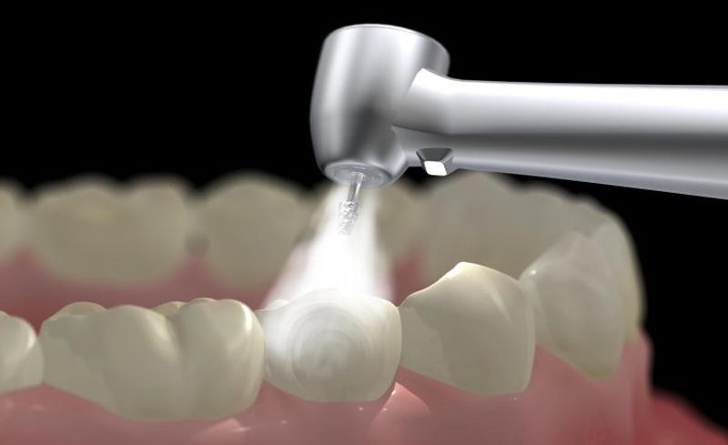 Trám răng là phương pháp trị sâu răng phổ biến hiện nay với hiệu quả cao.