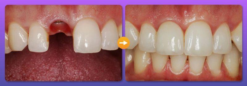 Trồng răng mới sau khi điều trị sâu răng để đảm bảo đủ điều kiện thi quân đội