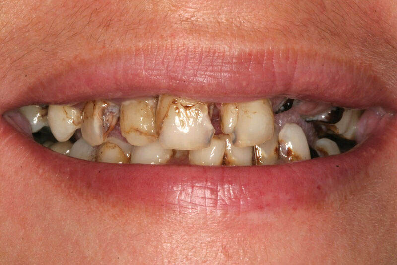 Sâu răng cửa: Nhận biết, nguyên nhân và hướng xử lý thích hợp