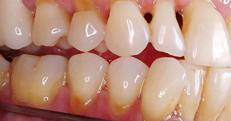 Bạn đọc nên lưu tâm khi có các dấu hiệu sâu răng cửa xuất hiện