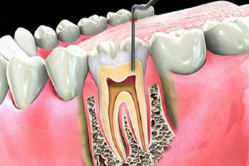 Điều trị sâu răng hàm bằng biện pháp điều trị tủy, bọc răng sứ