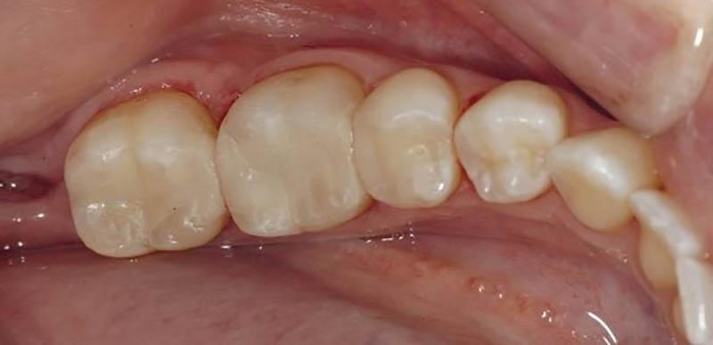 Sâu răng nhẹ có nguy hiểm không? Cách khắc phục kịp thời