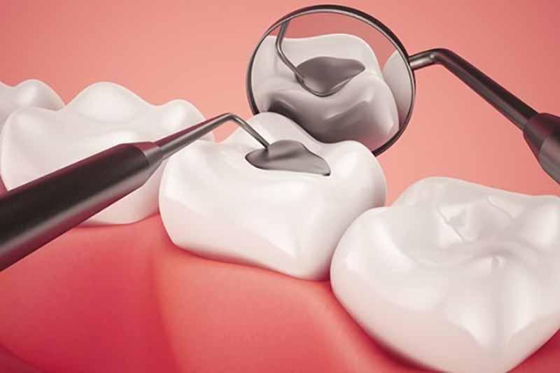 Khi có dấu hiệu bị sâu răng nhẹ, người bệnh nên đến nha khoa để được điều trị chuyên sâu