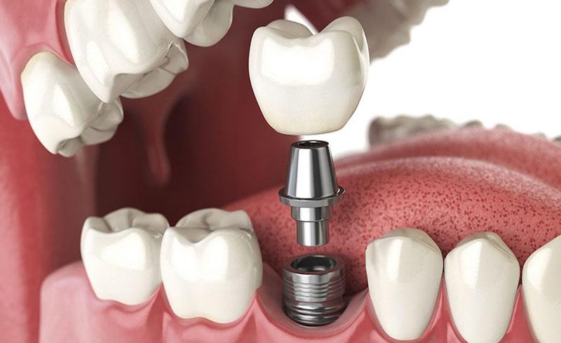 Khôi phục răng số 5 bằng phương pháp cấy ghép Implant.