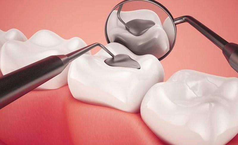 Bị sâu răng số 6 hàm dưới nhẹ cần trám răng để bảo vệ.