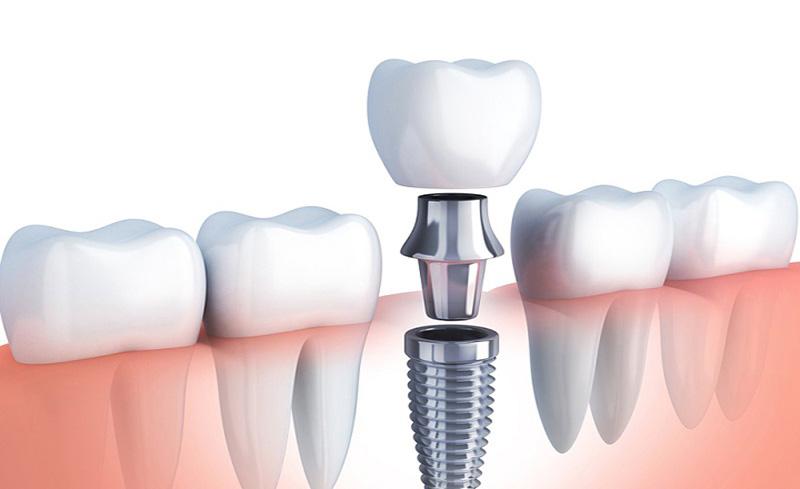 Sâu răng số 6 hàm trên hoặc dưới quá nặng phải nhổ bỏ và thay thế bằng phương pháp trồng răng Implant