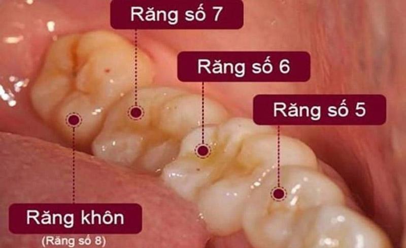 Vị trí của răng số 7 trên cung hàm của người trưởng thành.