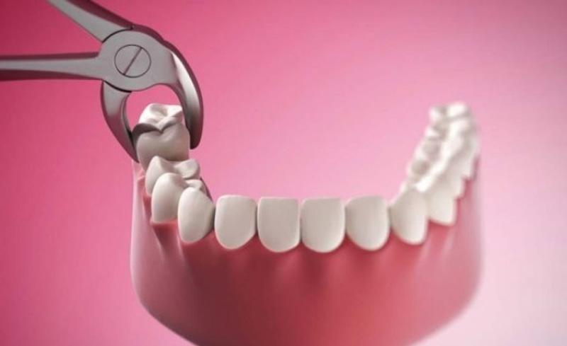 Nhổ sâu răng số 7 hư hại để bảo vệ các răng khác.