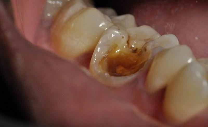 Hình ảnh người bệnh bị sâu răng số 7 hàm dưới
