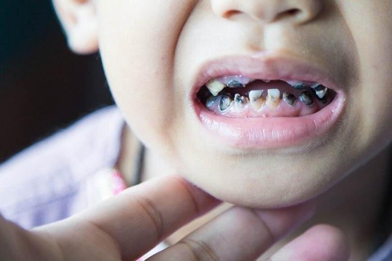 Cách điều trị tại nha khoa đối với hình ảnh sâu răng trẻ em
