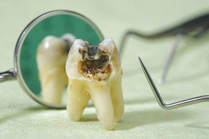 Tổng hợp các phương pháp điều trị sâu răng tận gốc