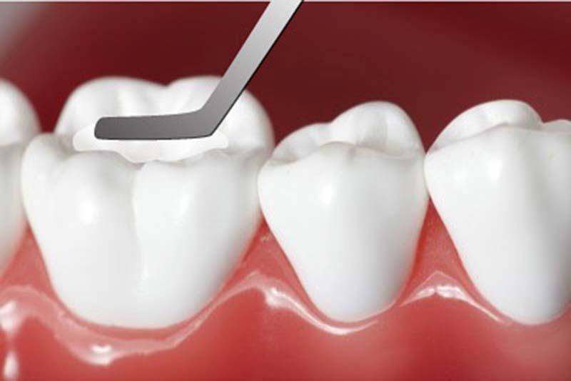 Tái khoáng giúp cho men răng chắc khoẻ hơn, từ đó khắc phục được bệnh