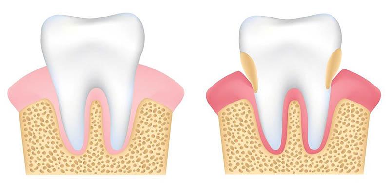 Viêm lợi là bệnh lý răng miệng không thể chủ quan