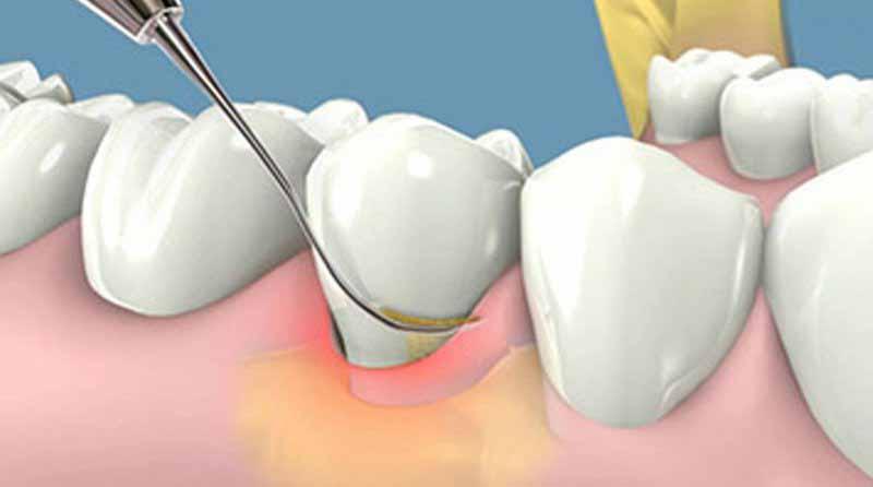 Đa số các trường hợp đều sẽ được chỉ định lấy vôi răng và dùng kháng sinh