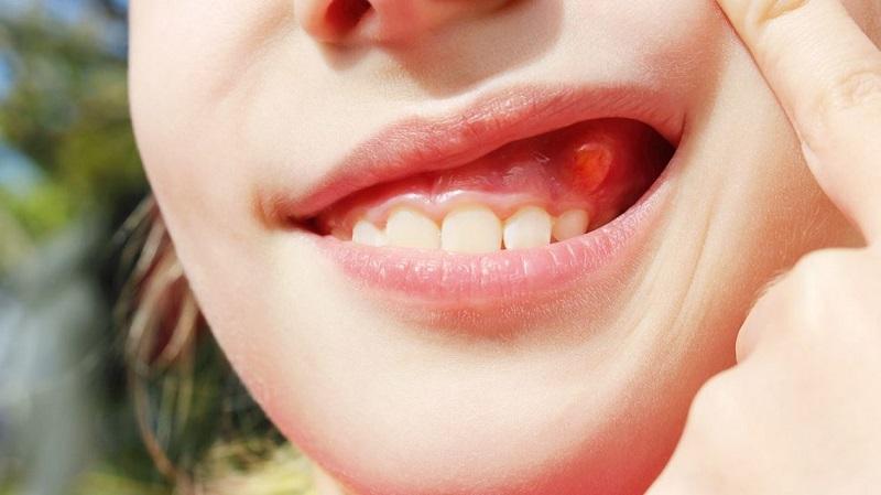 Áp xe quanh chóp răng có thể gây nên nhiều biến chứng khác nhau