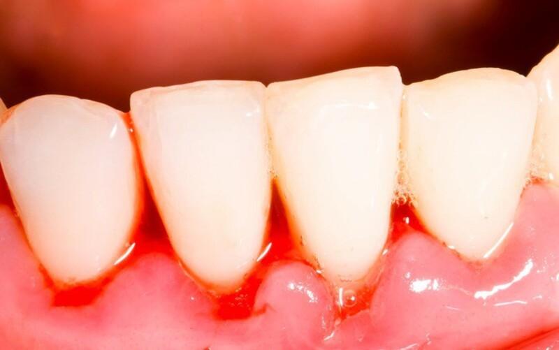 Áp xe răng là tình trạng viêm nhiễm xung quanh chân răng ở mức độ nặng do vi khuẩn gây ra