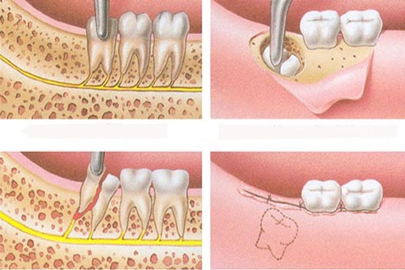 Thực hiện nhổ bỏ răng khôn đặc biệt là răng bị áp xe mọc nghiêng, lệch.