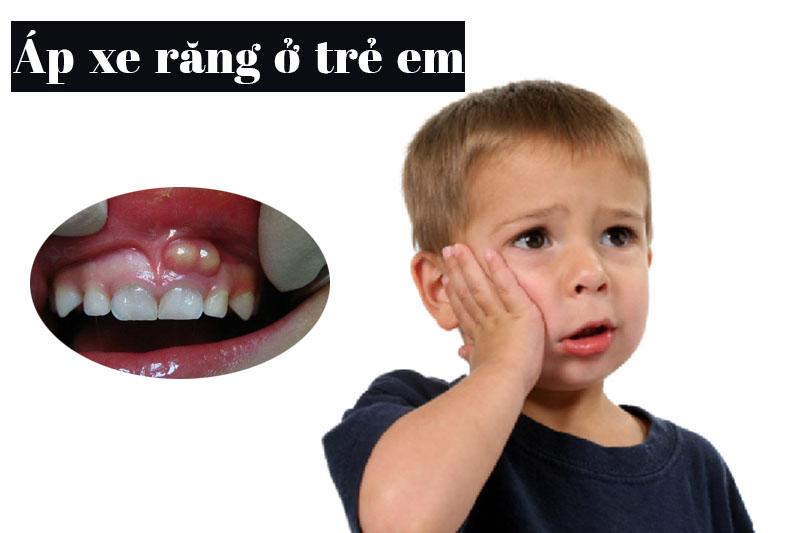 Áp xe răng thường gặp ở trẻ em giai đoạn thay răng