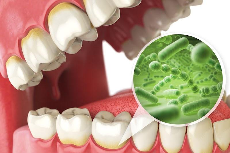 Vi khuẩn là nguyên nhân chính gây ra chứng áp xe răng ở trẻ nhỏ