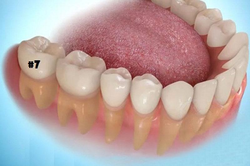 Răng số 7 là răng hàm có chức năng quan trọng trong việc nhai nghiền thức ăn.