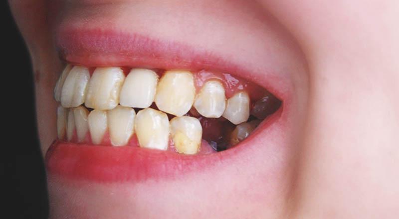 Vệ sinh răng miệng không đúng cách là nguyên nhân chính gây bệnh