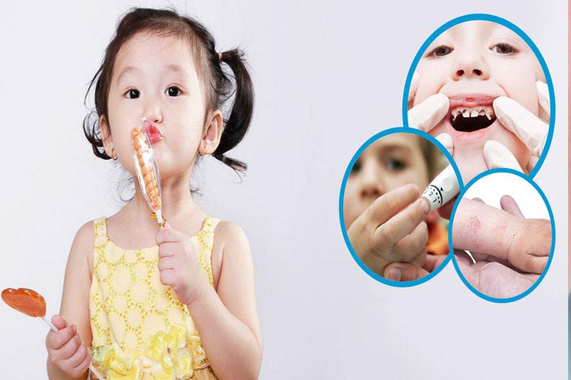 Sún răng ở trẻ nhỏ do sở thích ăn đồ ngọt mất kiểm soát
