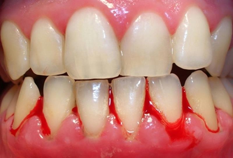 Tình trạng này có diễn biến thầm lặng và khá phức tạp, gây ra những nguy hiểm đến sức khỏe răng miệng