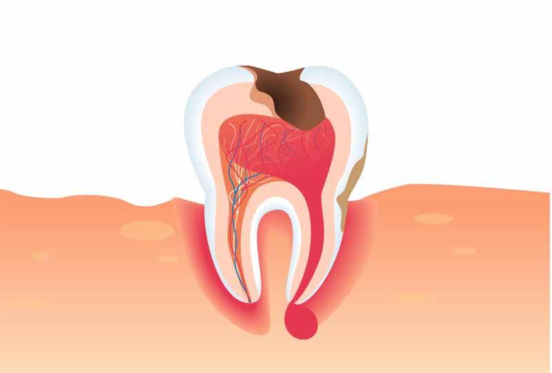 Áp xe răng là bệnh lý nguy hiểm gây ảnh hưởng đến sức khỏe chúng ta