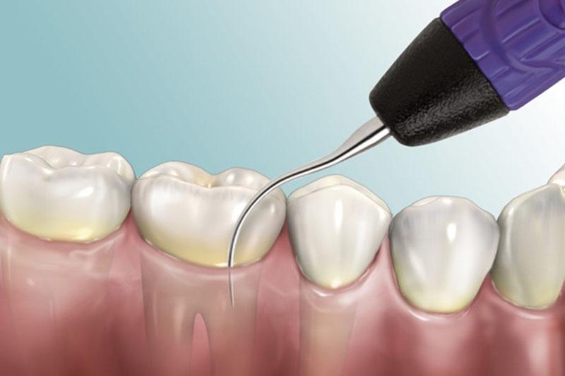 Việc thực hiện đến nha khoa để lấy cao răng là điều cần thiết