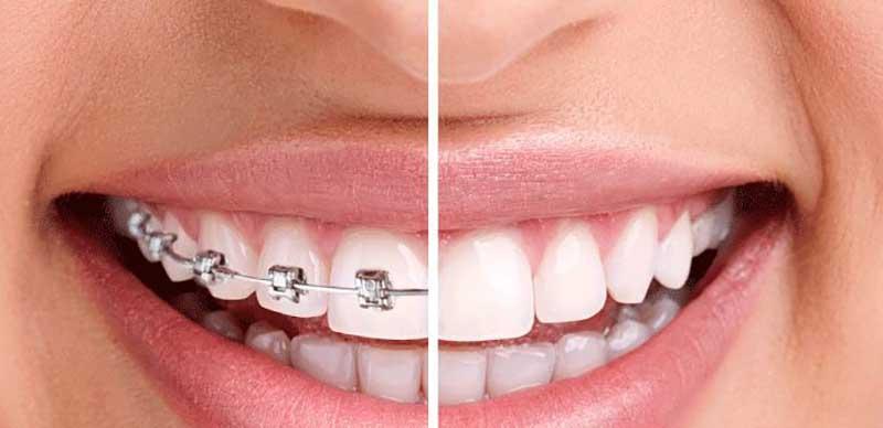 Tổng hợp các loại niềng răng phổ biến nhất hiện nay