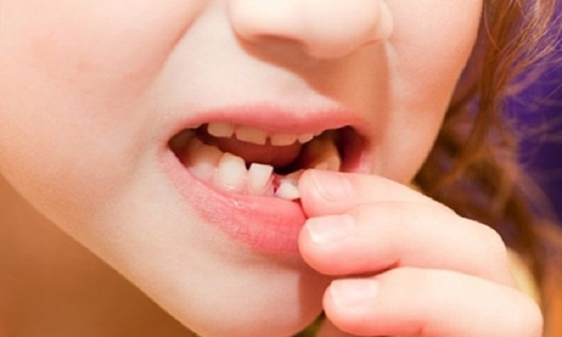 Khi thấy răng bé có dấu hiệu lung lay các bạn nên chủ động đưa bé tới viện khám và nhổ răng