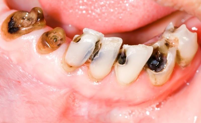 Sâu răng cũng là nguyên nhân gây hôi miệng nặng mùi