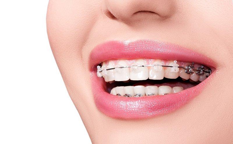Các loại dây cung trong niềng răng có tác dụng tốt trong quá trình đưa răng về vị trí mong muốn.