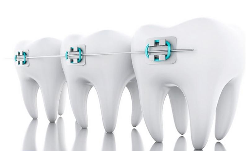 Có mấy loại dây cung trong niềng răng là thắc mắc của nhiều người khi có ý định chỉnh nha.
