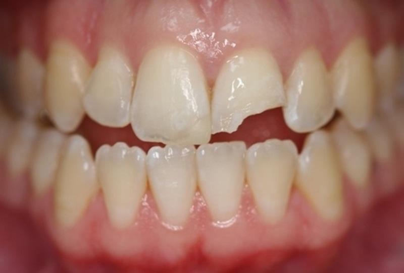 Một trong những nguyên nhân gây ê buốt chính là người bệnh bị vỡ răng