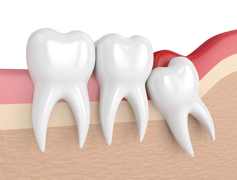 Răng không không được điều trị kịp thời gây nhiều ảnh hưởng xấu đến sức khoẻ