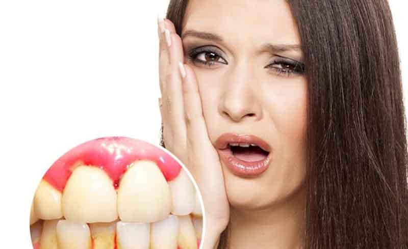 Hôi miệng chảy máu chân răng chữa trị như thế nào hiệu quả?